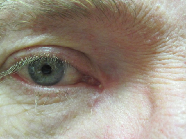 Eyelid lumps and lesions | The BMJ
